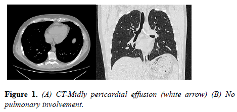 current-trends-cardiology-pericardial