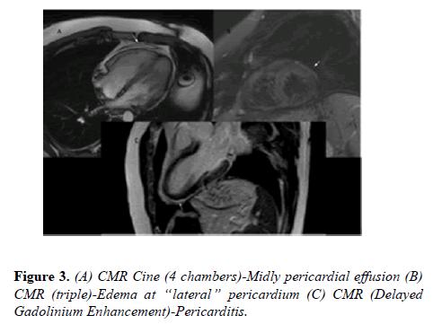 current-trends-cardiology-pericardium