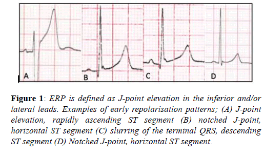 current-trends-cardiology-point-elevation
