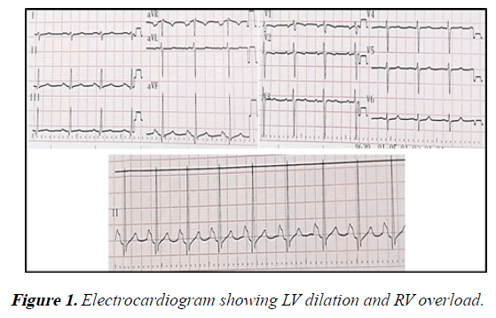 current-trends-in-cardiology-Electrocardiogram