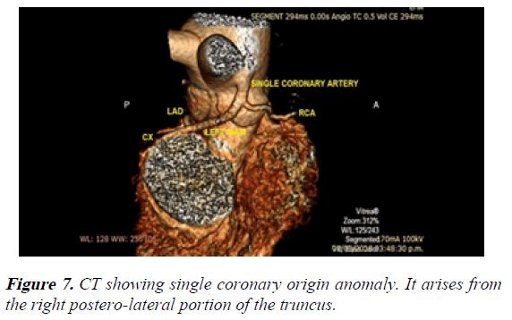 current-trends-in-cardiology-truncus