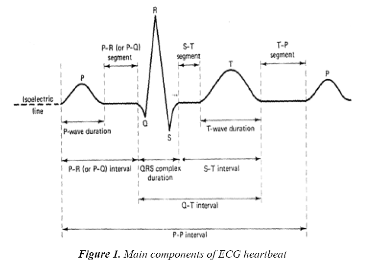 A novel technique for stress recognition using ECG signal