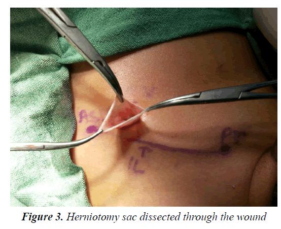currentpediatrics-Herniotomy-sac