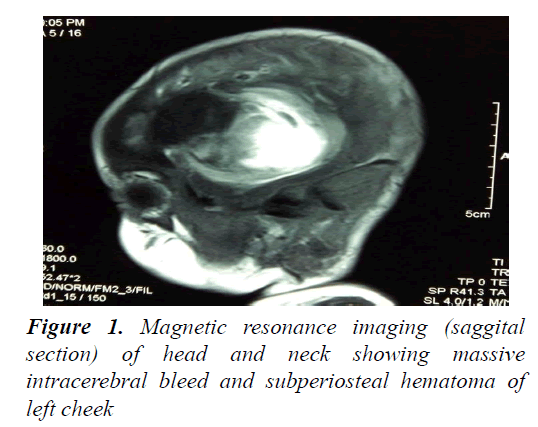currentpediatrics-Magnetic-resonance