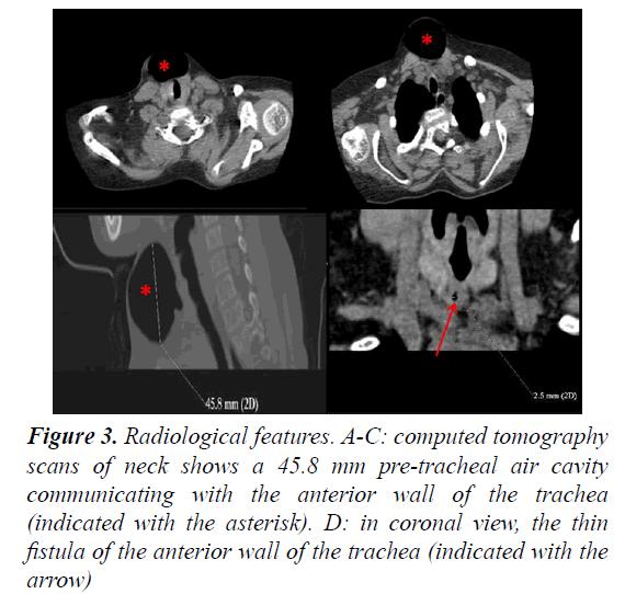 currentpediatrics-Radiological-features