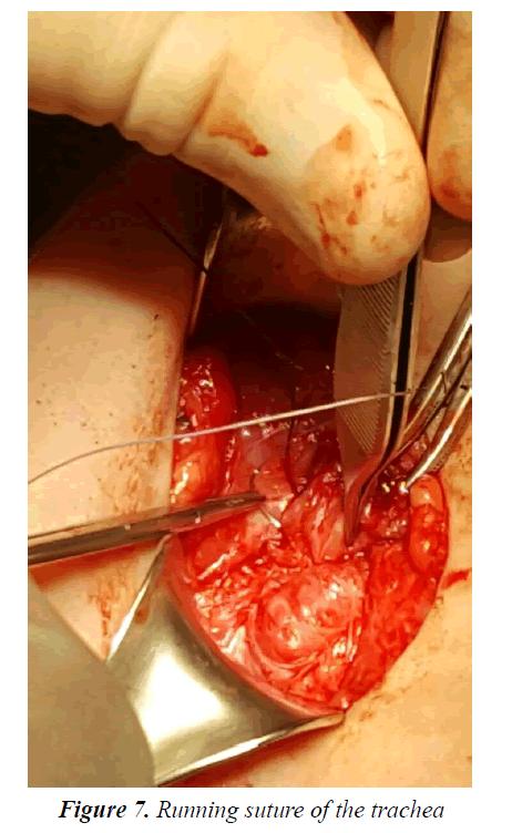 currentpediatrics-Running-suture