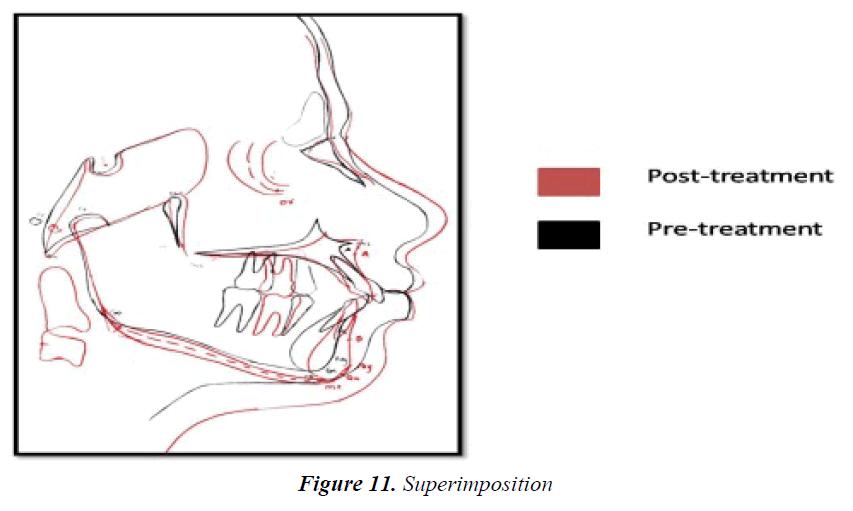 currentpediatrics-Superimposition