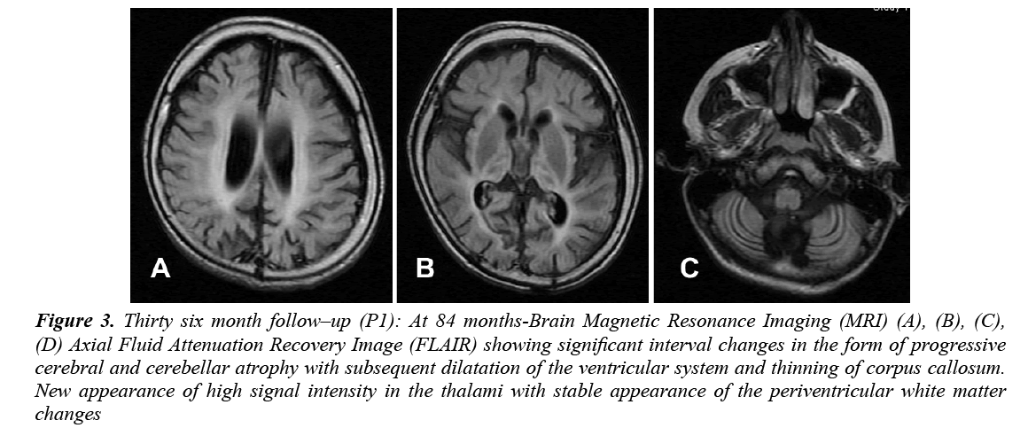 currentpediatrics-cerebellar-atrophy