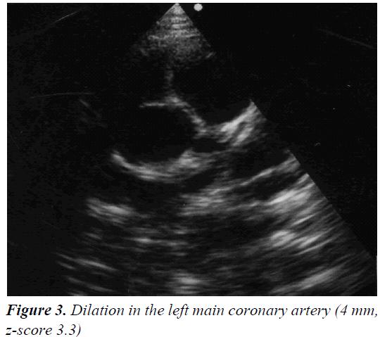 currentpediatrics-coronary-artery