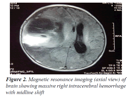 currentpediatrics-intracerebral-hemorrhage