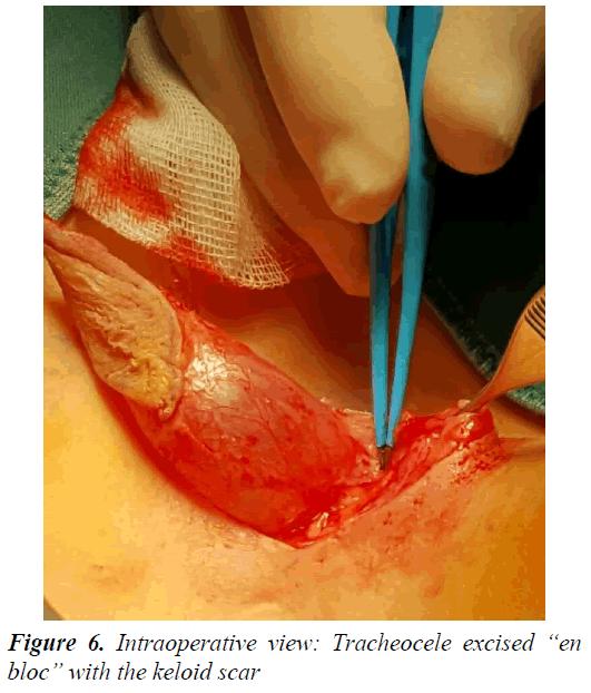 currentpediatrics-keloid-scar