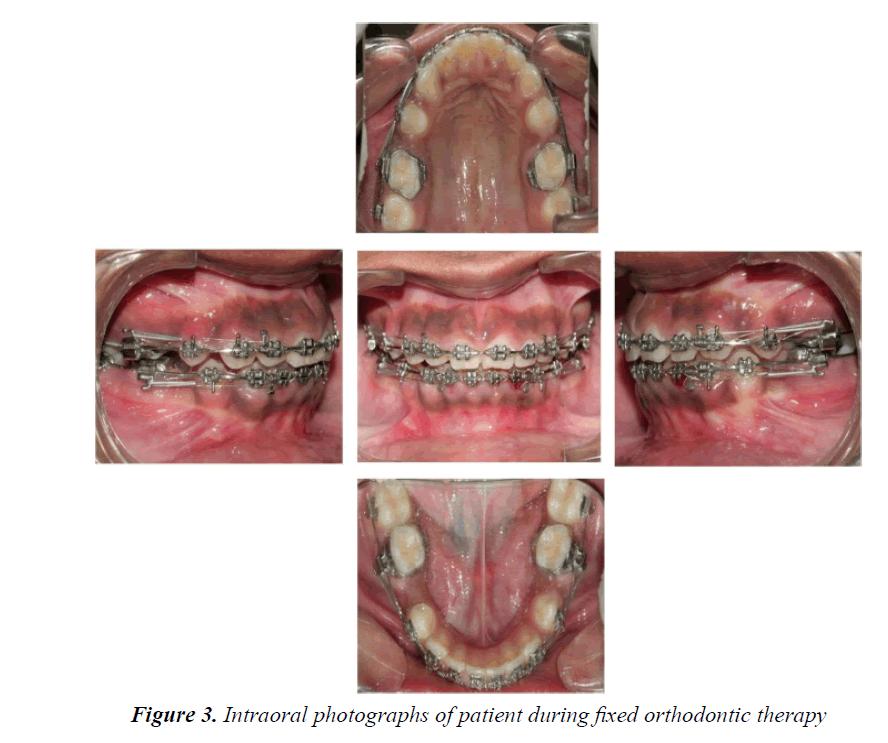 currentpediatrics-orthodontic-therapy
