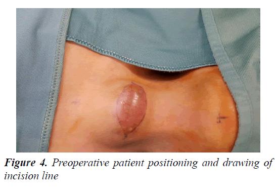 currentpediatrics-patient-positioning