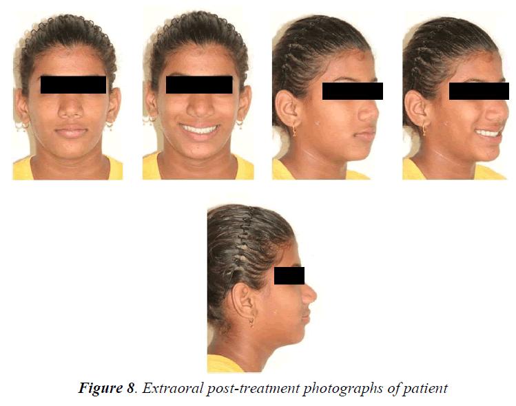 currentpediatrics-post-treatment
