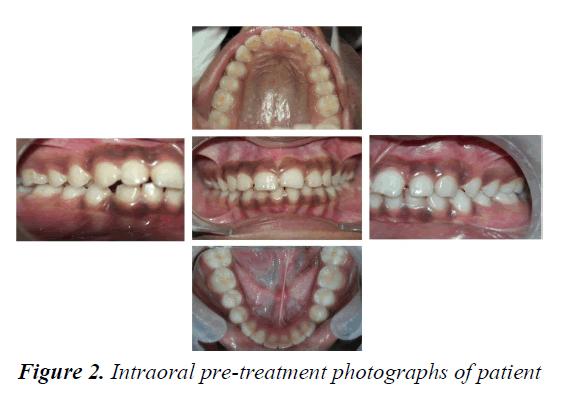 currentpediatrics-pre-treatment