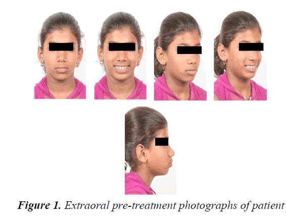 currentpediatrics-treatment-photographs
