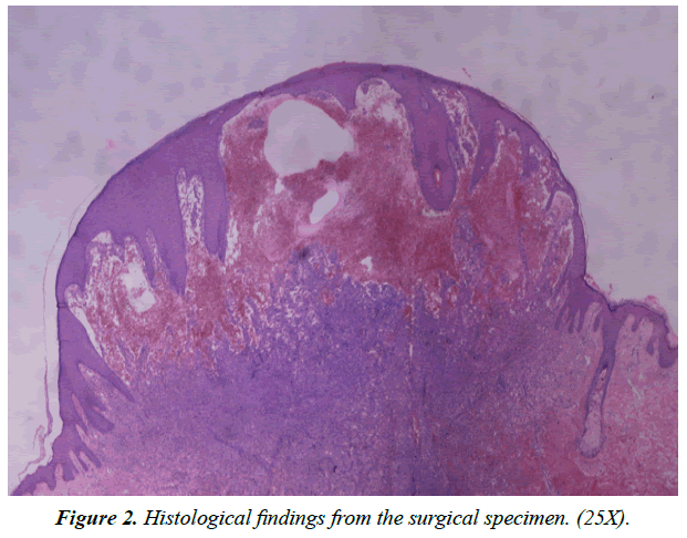 dermatology-research-skin-care-Histological-findings