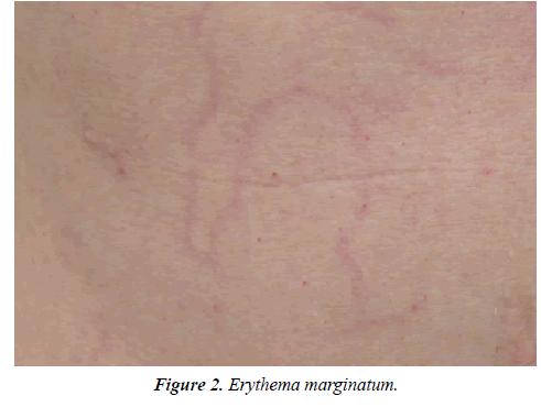 dermatology-research-skin-care-erythema