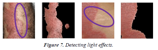 dermatology-research-skin-care-light-effects