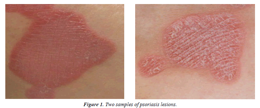 dermatology-research-skin-care-psoriasis-lesions