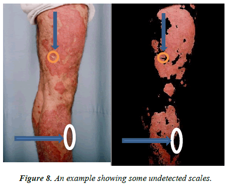 dermatology-research-skin-care-undetected-scales