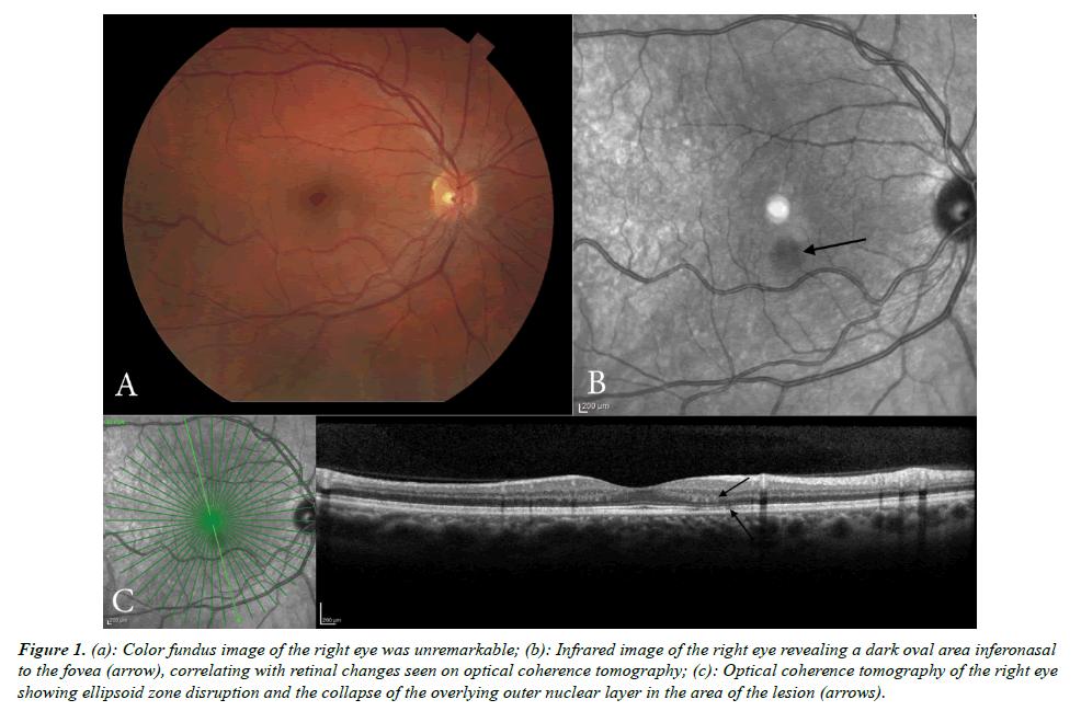 eye-research-fundus