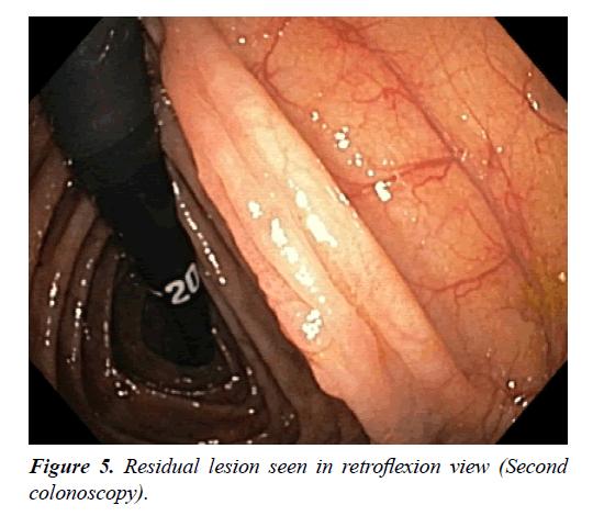 gastroenterology-digestive-disease-retroflexion-view