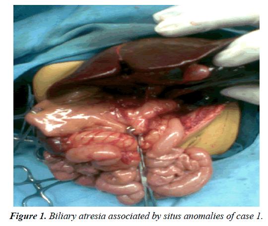 gastroenterology-digestive-diseases-Biliary-atresia
