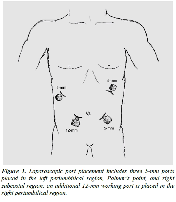 gastroenterology-digestive-diseases-Laparoscopic-port