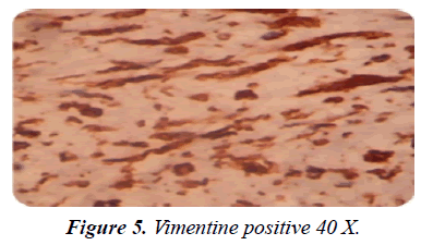 gastroenterology-digestive-diseases-Vimentine-positive