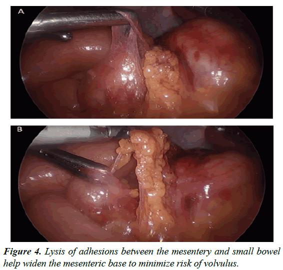 gastroenterology-digestive-diseases-adhesions-between