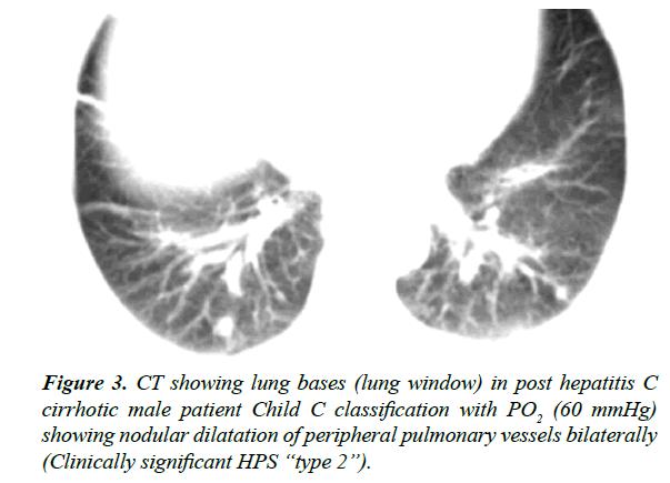 gastroenterology-digestive-diseases-cirrhotic
