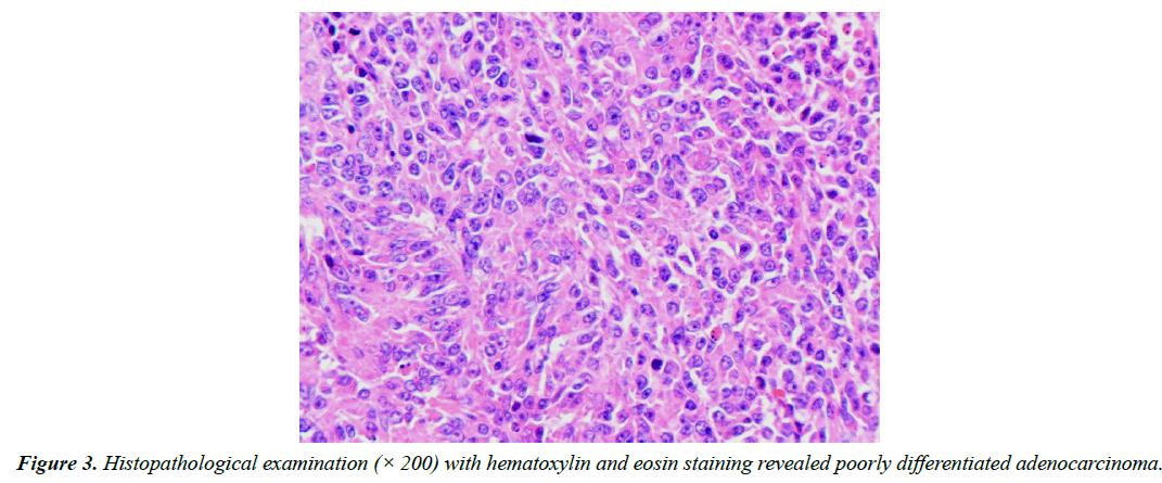 gastroenterology-digestive-diseases-eosin-staining