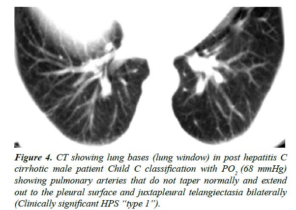 gastroenterology-digestive-diseases-juxtapleural