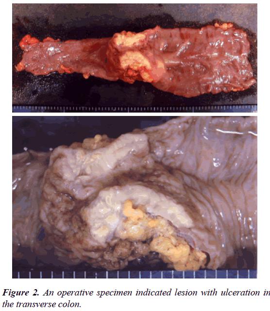 gastroenterology-digestive-diseases-operative-specimen