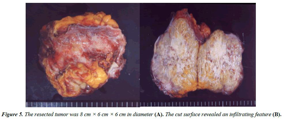 gastroenterology-digestive-diseases-resected-tumor