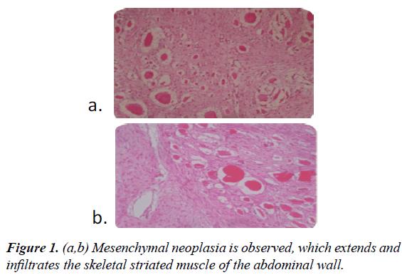gastroenterology-digestive-diseases-striated-muscle