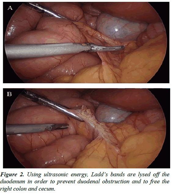 gastroenterology-digestive-diseases-ultrasonic-energy