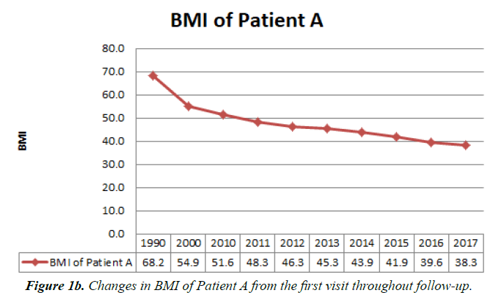 general-internal-medicine-BMI-Patient
