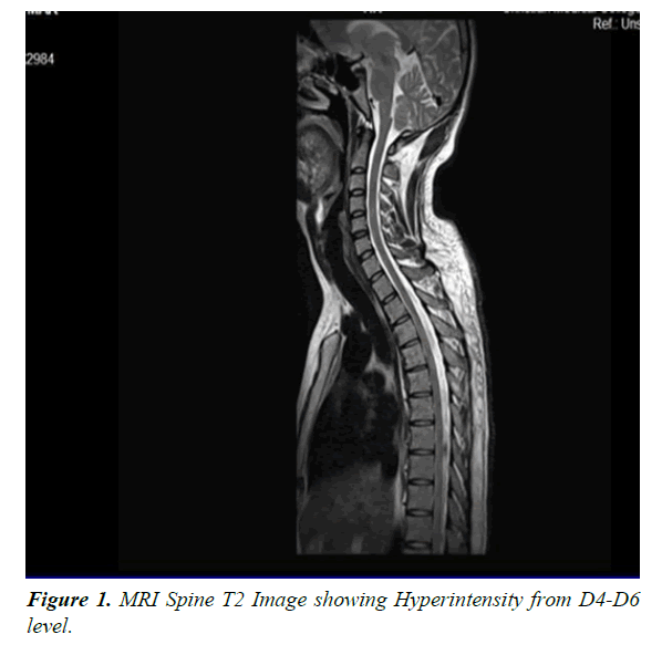 general-internal-medicine-MRI-Spine
