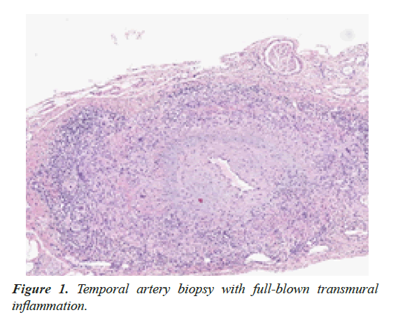 general-internal-medicine-artery-biopsy