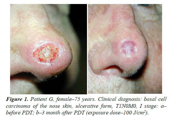 photodynamic therapy for patients with basal cell carcinoma: n.n., Human Body