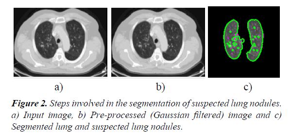 general-internal-medicine-lung-nodules