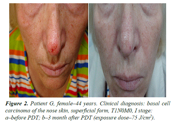 general-internal-medicine-nose-skin