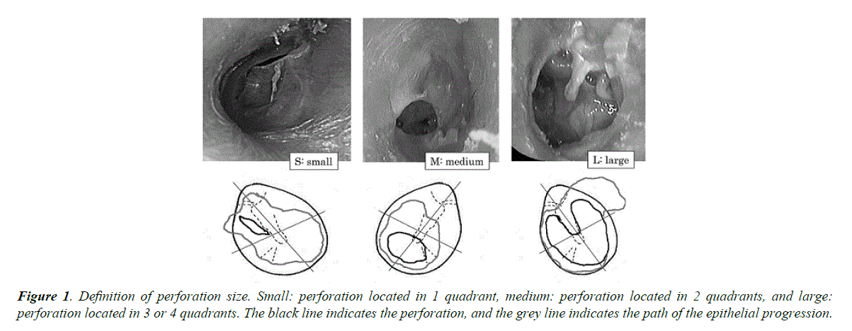 general-internal-medicine-perforation-size