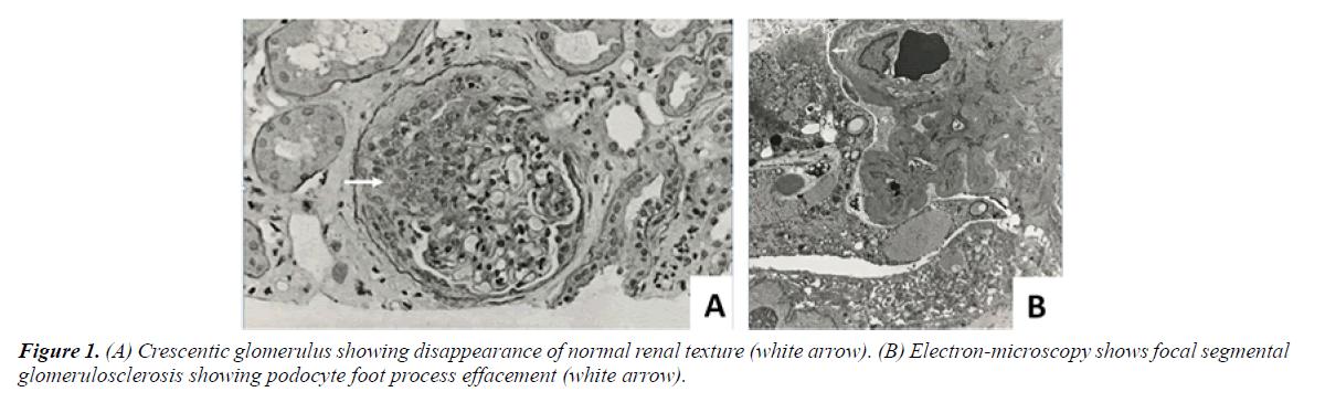 general-internal-medicine-renal-texture
