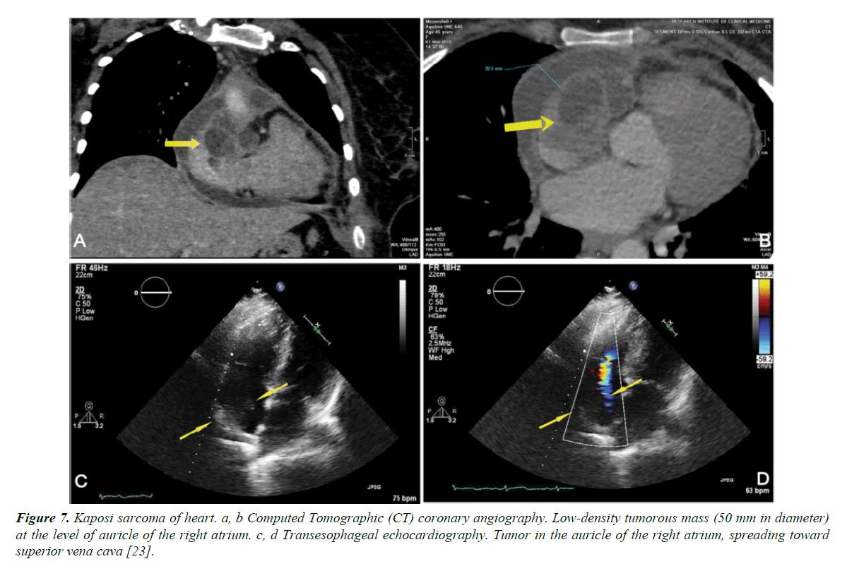 general-internal-medicine-sarcoma-heart