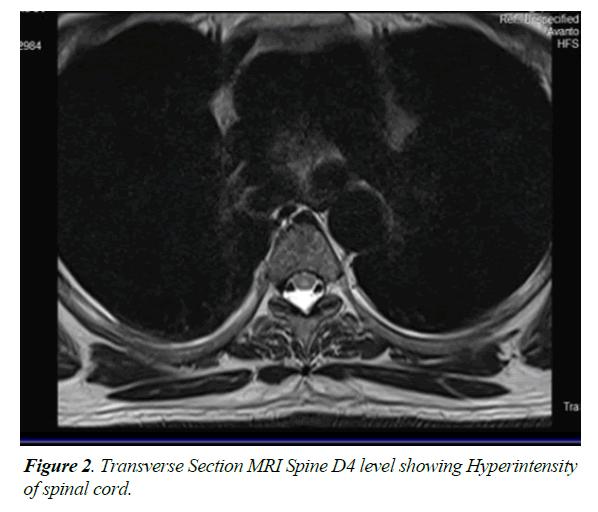 general-internal-medicine-spinal-cord