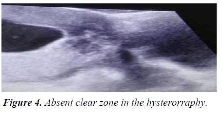 gynecology-clear