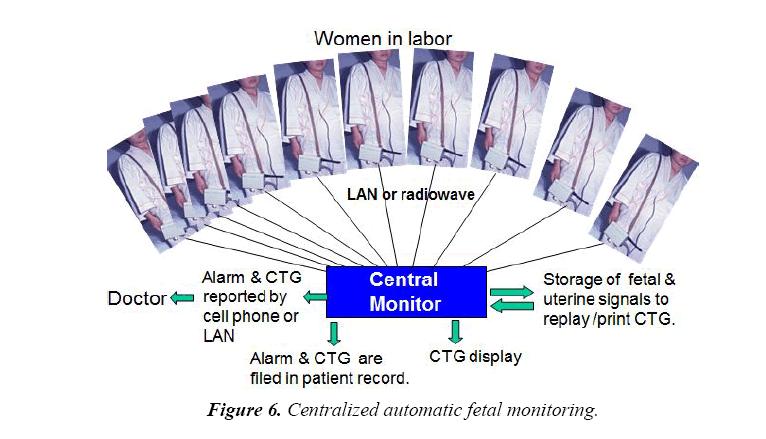 gynecology-obstetrics-hysteroscopic-centralized